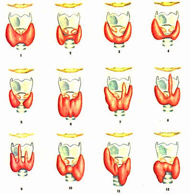 нормальные формы щитовидной железы