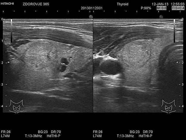 Можно ли делать узи щитовидной железы при беременности