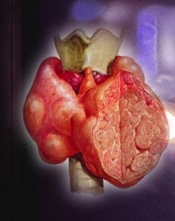увеличенная щитовидная железа лечение