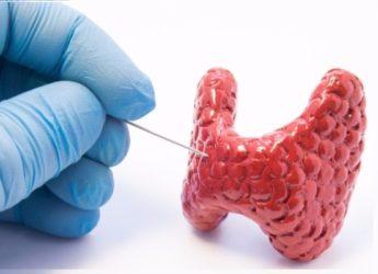Биопсия щитовидки иглой