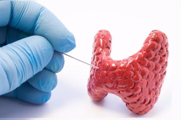 Последствия биопсии щитовидной железы
