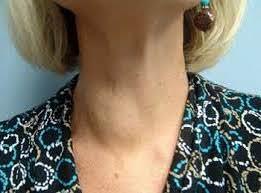 узел щитовидной железы