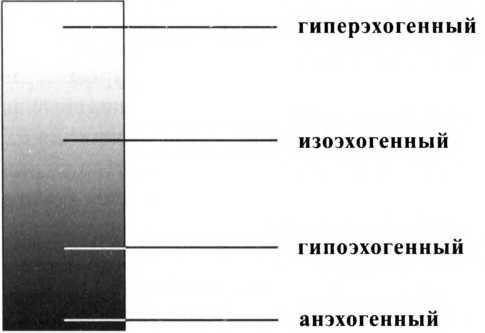 виды узлов щитовидной железы