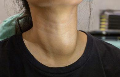Зоб на шее