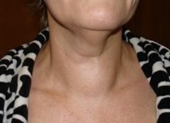 узловой зоб на шее